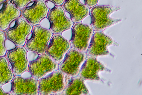Phytoplankton under a microscope.